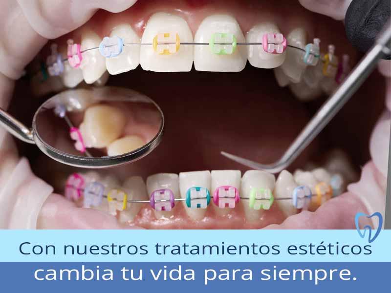 Clínica Dental en México